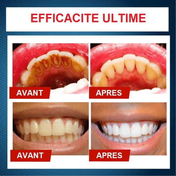 Dentifrice pour le blanchiment des dents - maxisourire